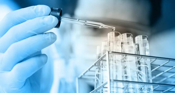 Synlab apre ai privati per i test degli anticorpi Sars-Cov-2